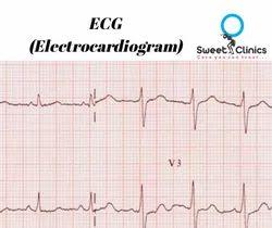 ECG (Electrocardiogram)