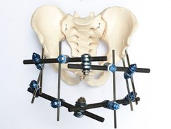 Pelvic Fixator Synthes Type